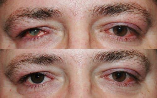 Protezy i epiprotezy oka